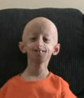 Werner Syndrome/ Adult Progeria/ Adult Premature Aging ...