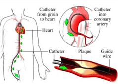 DrThind_Homeopathy_Chandigarh_health-tools-coronary-image