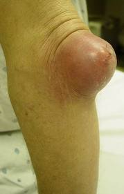 prepatellar bursitis steroid injection