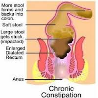 Homeopathic_doctor_chandigarh_Constipation
