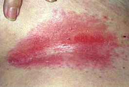 From North folliculitis in folds of the vulva