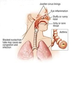 Homeopathic_doctor_chandigarh_allergic rhinitis_2