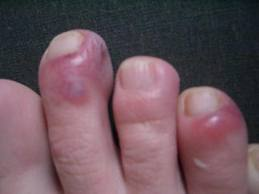 Cellulitis it is characterized by redness swelling warmth and pain
