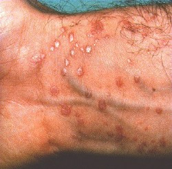 Homeopathic_doctor_chandigarh_drthind_lichen-planus