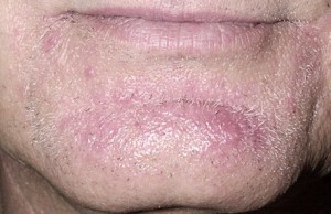 Barber Itch : Tinea Barbae / Barbers Itch / Tinea Sycosis - Dr. Thinds Homeopathy ...