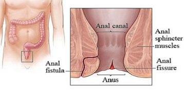Naked Images Vagina orgasm spots