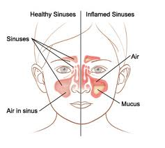 Homeopathic_doctor_chandigarh_sinusitis