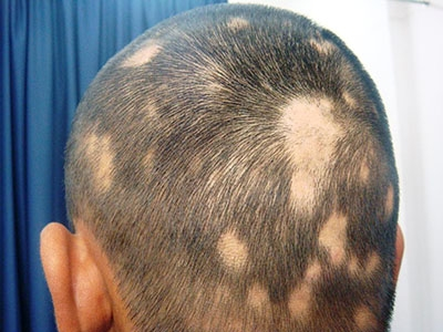 drthind_alopecia areata_homeopathy_chd