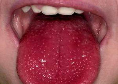 Kawasaki Disease Conjunctivitis