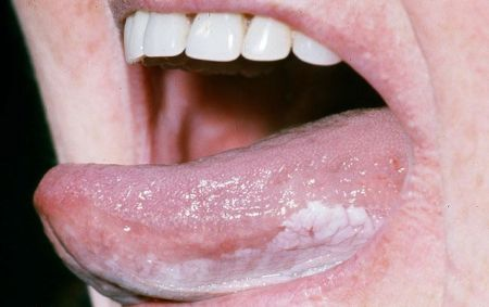 oral leukoplakia – dr. thind, Skeleton