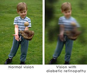 Homeopathic_doctor_chandigarh_drthind_diabetic-retinopathy