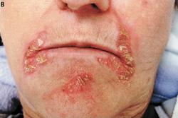 Homeopathic_doctor_chandigarh_drthind_glucogonoma