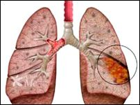 Homeopathic_doctor_chandigarh_drthind_lung-abscess