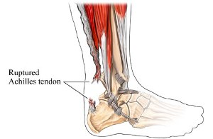 Homeopathic_doctor_chandigarh_achilles-tendon-rupture