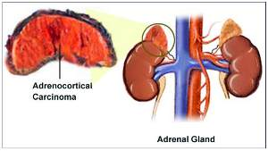 Homeopathic_doctor_chandigarh_drthind_adrenal-cancer