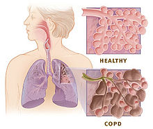 Homeopathic_doctor_chandigarh_drthind_copd