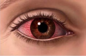 Homeopathic_doctor_chandigarh_drthind_dry-eye-syndrome