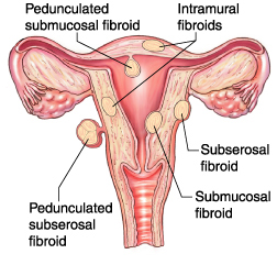 How to Naturally Eliminate Uterine Fibroids and Get Pregnant Without Surgery