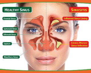 drthind_sinusitis