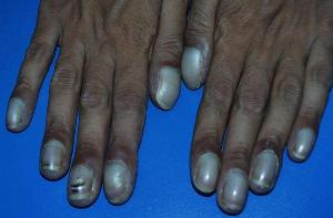 BLUISH NAILS A Blue Nail Is Clear Indication That Youre Not Getting Enough Oxygen To Your Fingertips This Could Be Caused By