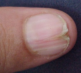 Nails Are The Window To Your Health   Dr. Thind\'s Homeopathic Clinic