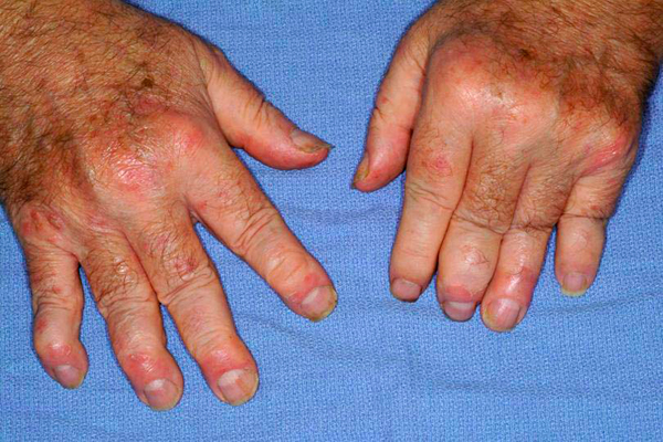 drthind_psoriatic_arthritis_homeopathy_chandigarh