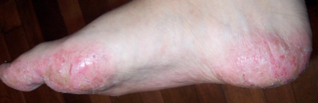 Dyshidrotic Eczema Causes | Homeopathic Treatment