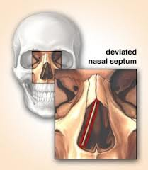 Deviated Nasal Septum Causes Homeopathic Treatment