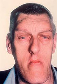 acromegaly symptoms
