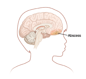 how to get an abscess to come to a head
