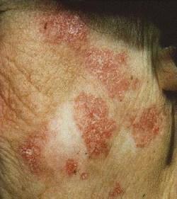 discoid lupus erythematosus