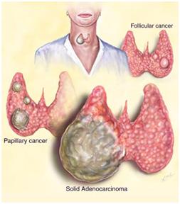 follicular thyroid carcinoma