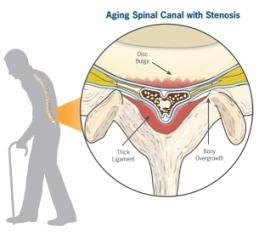 lumbar-canal-stenosis
