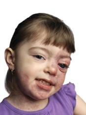 klippel trenaunay syndrome