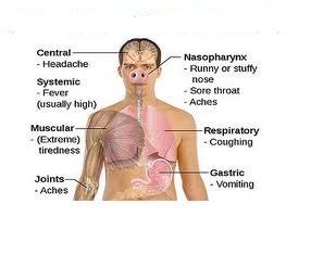 Homeopathic_doctor_chandigarh_swine flu_1