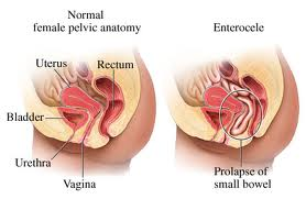 Homeopathic_doctor_chandigarh_uterine prolapse