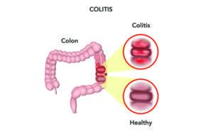 collagenous colitis