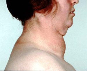 diffuse toxic goiter