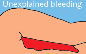 dysfunctional uterine bleeding