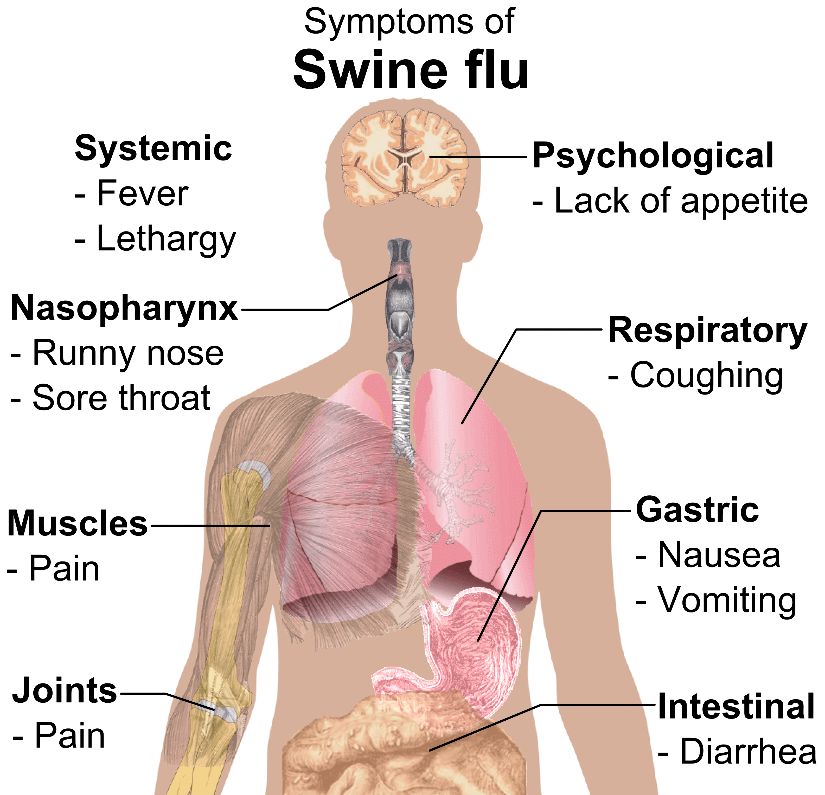 swine flu article The recent outbreak of human infection with a novel swine-origin influenza a ( h1n1) virus is spreading rapidly through sustained human-to-human.