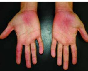What Your Hands Predict About Your Health Dr Thind