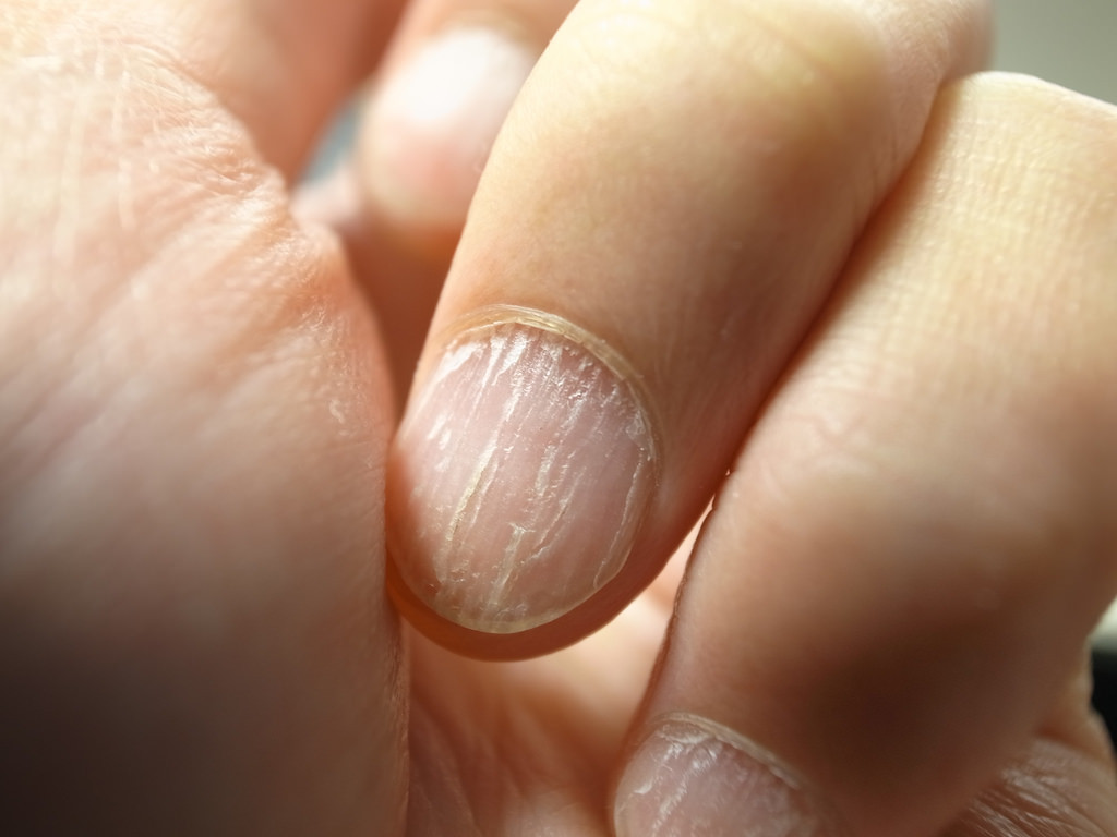 Nails Are The Window To Your Health | Dr. Thind