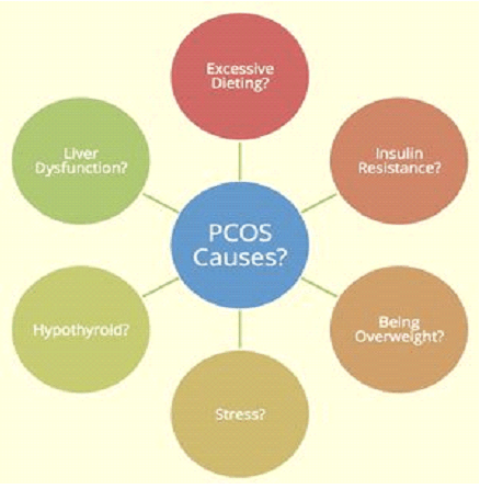 causes of pcod causes of pcos